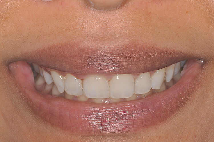case 2 front teeth gap spacing dental bonding after