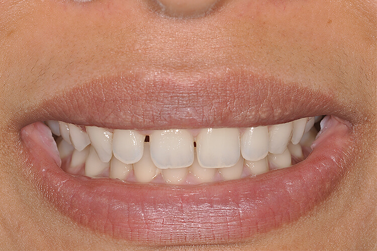 case 2 front teeth gap spacing dental bonding before