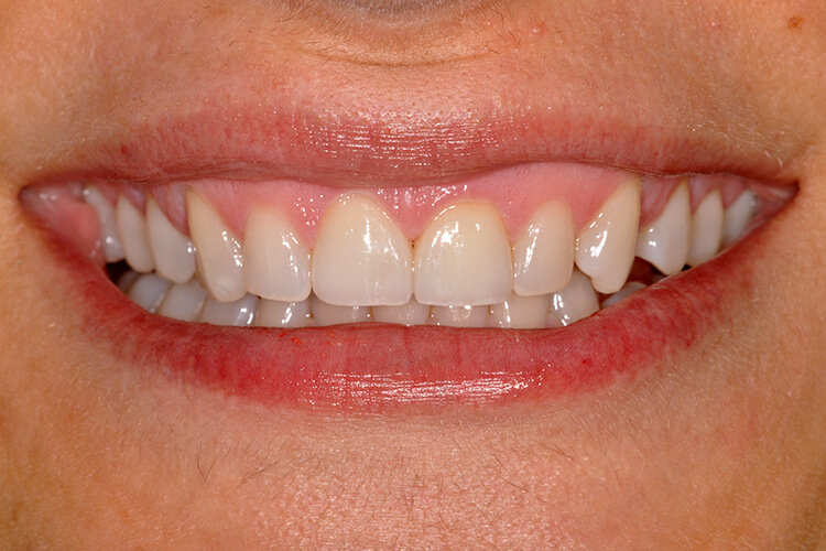 Porcelain Veneers Front Teeth Case Two After