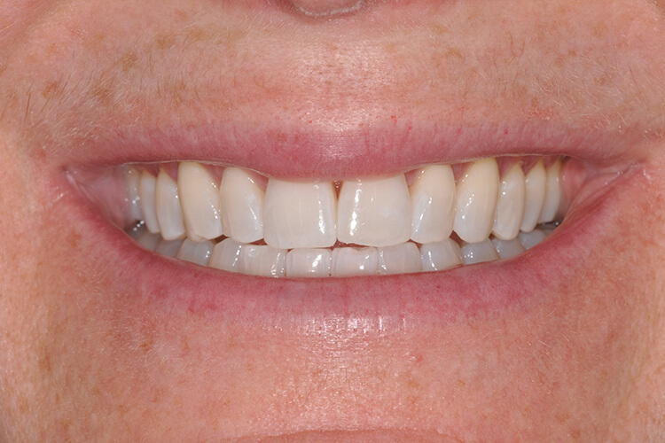 Case Two Teeth Whitening Service After Photo