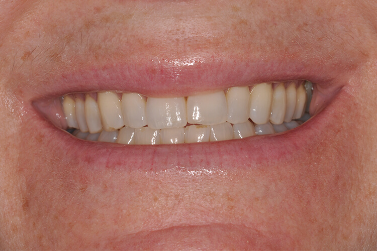 Case Two Teeth Whitening Service Before Photo