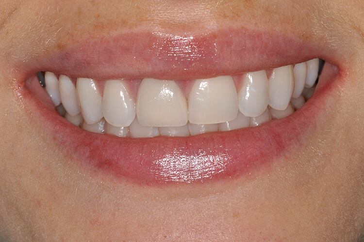 Single Porcelain Veneer After