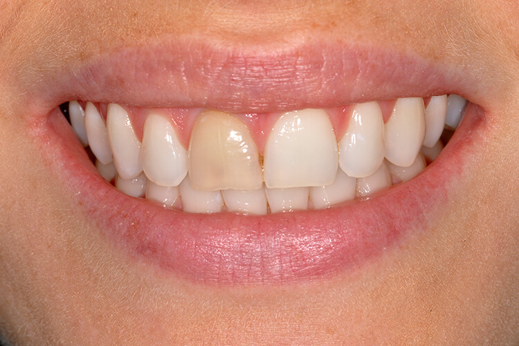 Single Porcelain Veneer Before