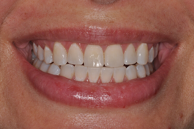 Case One Teeth Whitening Service After Photo