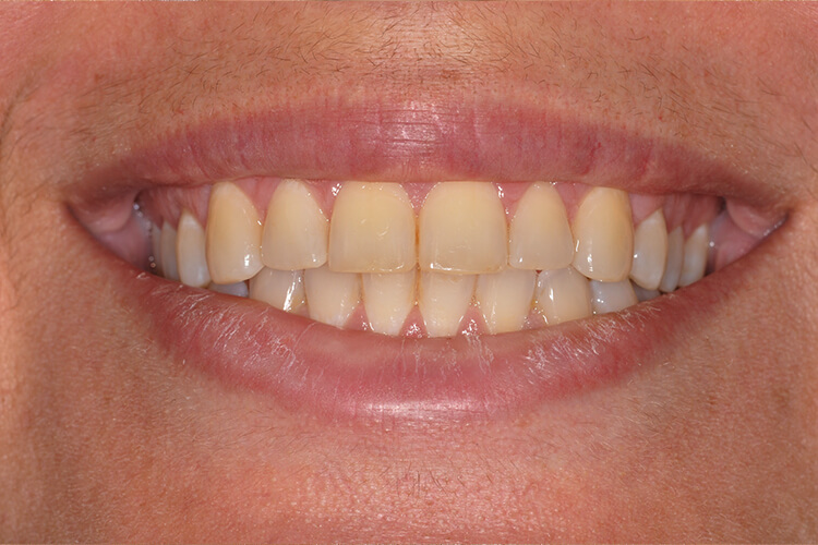 Case One Teeth Whitening Service Before Photo