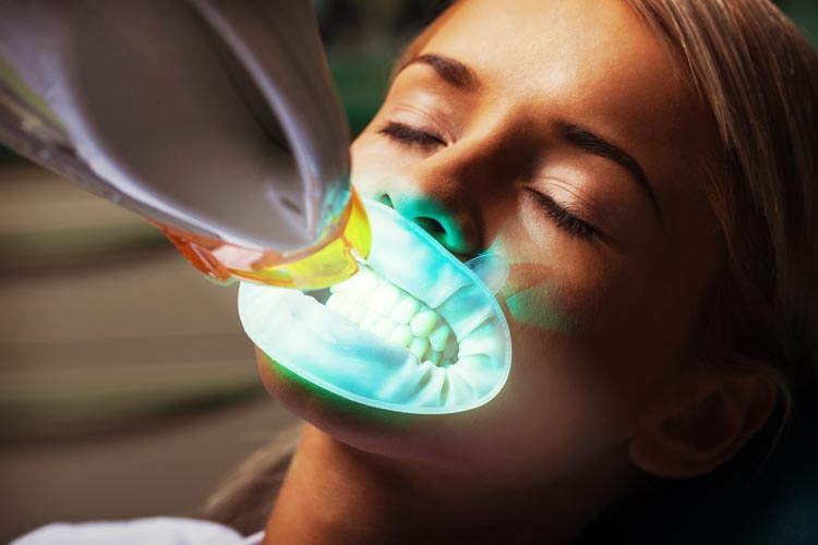 teeth whitening NYC brooklyn dental service thumbnail image